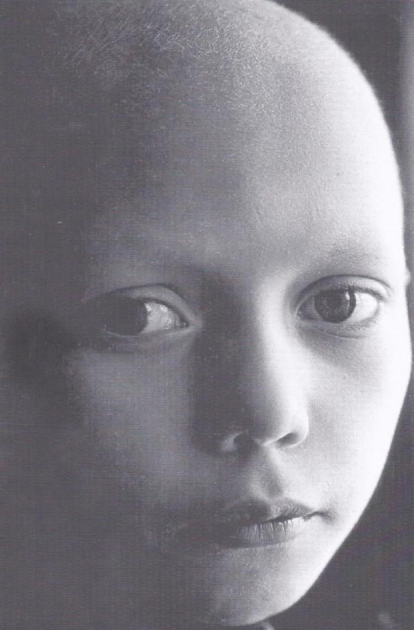 Die Augen von Nadeshda. Nadeshda erkrankte 1995, als sie sieben Jahre alt war. Ein ganzes Jahr lang verbrachte sie in der Abteilung für Hämatologie und Onkologie. Aber die Ärzte schafften es nicht, die kleine Nadeshda zu retten.